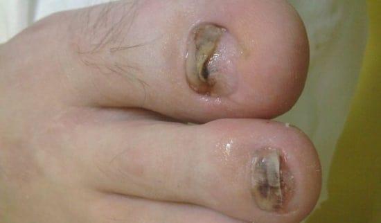 fotodinamicna terapija in glivični nohti