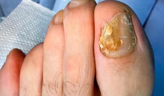 glivice na nohtih prej potem pedimed