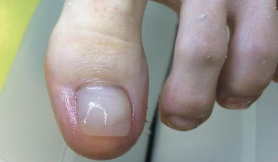 nohtna protetika pedimed