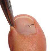 Vraščeni nohti pri otrocih - saniramo jih s 3TO sponkami