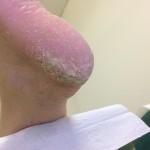 Ragade - znebimo se trde kože na peti