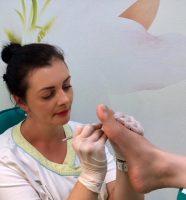 Glivice na nohtih