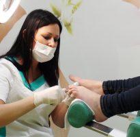 Protesi dell'unghia