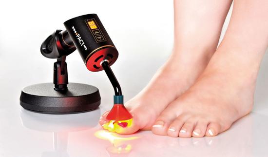 Glivice na nohtih - sanacija je fotodinamična terapija