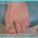 glivice na nohtih pred terapijo