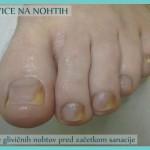 Glivice na nohtih - pred začetkom sanacije