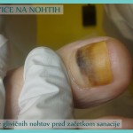 Glivice na nohtih - stanje pred začetkom sanacije