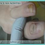 Glivice na nohtih - stanje pred začetkom sanacije - 2 problematična nohta