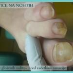 Glivice na nohtih - stanje pred začetkom sanacije - 3 nohti