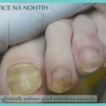 Glivice na nohtih - stanje pred začetkom sanacije - 4 nohti