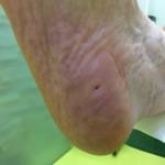Kurje oko - sanacija stopala