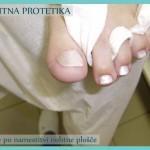 Nohtna protetika - po izvedenem delu protetike
