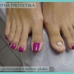 Nohtna protetika - po sanaciji