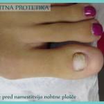 Nohtna protetika - preden začnemo z delom