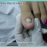 Stanje pred namestitvijo nohtne plošče - Nohtna protetika