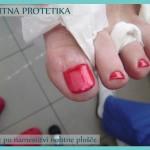Nohtna protetika - stanje po koncu sanacije z lakiranjem_2