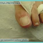 Nohtna protetika - stanje po koncu sanacije_3