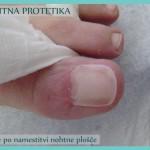 Nohtna protetika - stanje po koncu sanacije_4