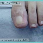 Nohtna protetika - stanje po koncu sanacije_2