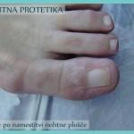 Nohtna protetika - stanje ob koncu uspešne sanacije