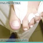 nohtna_protetika_stanje_po_namestitvi_nohtne_plosce
