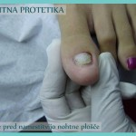 nohtna_protetika_stanje_pred_namestitvijo_nohtne_plosce-2