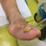 Sanacija glivičnih nohtov - pred sanacijo