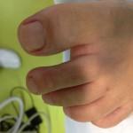 Slika glivic na nohtih po terapiji