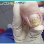 Terapija s 3TO sponko - primer problematičnega nohta - 9. primer