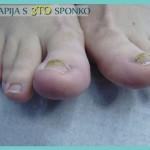 Terapija s 3TO sponko na obeh palcih na nogah